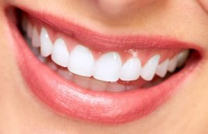 Teeth whitening in Warner Robins